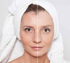 Elite Skin Rejuvenation offers radio frequency skin tightening & RF facial contouring treatment in Vaughan & Toronto. We provide Rf Skin Tightening services at affordable prices. Radio Frequency Facial, Radio Frequency Skin Tightening, Facial Treatment, Skin Treatments, Facial Before And After, Botox Brow Lift, Facial Steaming, Spa, Hair Rinse
