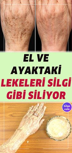 skin Elinizdeki ve Ayağınızdaki Lekelerden Anında Kurtulun! Homemade Skin Care, Diy Skin Care, Homemade Beauty, Beauty Care, Beauty Skin, Health And Beauty, Perfumes Versace, Home Beauty Tips, Beauty Secrets