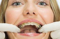 aparat na zęby - czemu nie ;-) #DeClinic #ortodonta_warszawa #ortodoncja_warszawa #aparat_staly #aparat_na_zeby;)