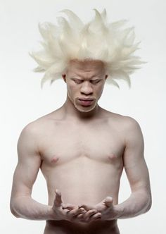 Albino model, Deejay Jewell