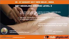 Dry Needling, Trigger Points, Clinic, Conditioner, How To Get