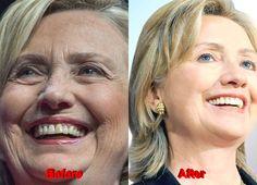 Hillary Clinton Plastic Surgery eyelid
