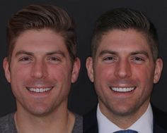 Before and after of no drilling lumineers/veneers by Da Vinci Dental. Dentistinbellevue.com Dr. Beau and Andrew Keller.