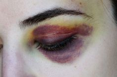 Bruised eye , healing, maybe a couple days old, gore