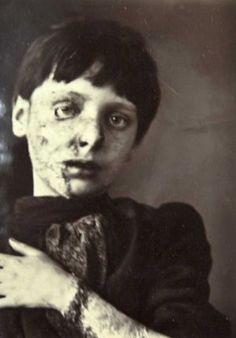 Nipper Morgan before treatment (Victorian skin ailment at Wakefield Asylum)