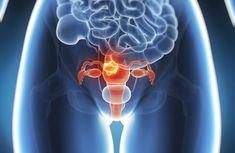 60 procent van de gevallen van baarmoederkanker kan worden voorkomen