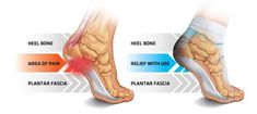 Find plantar fasciitis relief with the Thermoskin Walk On foot supports.