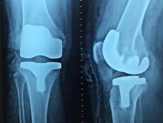 Remedies For Knee Pain Invasive procedures and expensive prescriptions for treatment of osteoarthritis of the knees may be going the way of tonsillectomies. New research, includi Lower Your Cholesterol, Cholesterol Lowering Foods, Cholesterol Levels, Cholesterol Symptoms, Hip Resurfacing, Joint Replacement, Medical Imaging, Knee Pain, Rheumatoid Arthritis