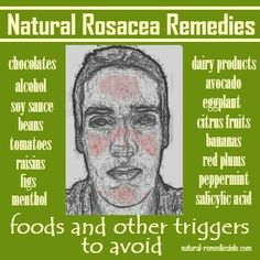 Natural Rosacea Remedies: foods and other triggers to avoid or as I think of it - say goodbye to everything I love... Except salicylic acid. Who loves that?