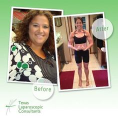 """""""On March 23, 2010 I had RNY gastric bypass surgery performed by Dr. Yu. When my journey to weight loss began, I was 278 pounds and on 12 prescriptions, morbidly obese with several comorbidities. My surgery completely changed my life. Three and a half years post op, I have lost nearly 150 pounds and am maintaining a healthy weight of 132 at 5' 6"""". I hope to inspire others to do the same."""" - Emily B.H.  http://www.tlcsurgery.com/"""