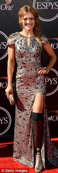 Amy Purdy (ESPY Awards) adorned with strength of character
