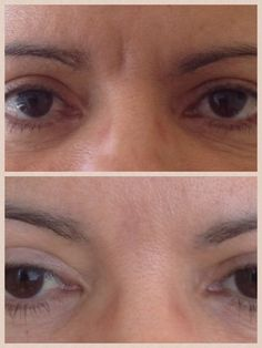 Glabella lines treated with botox and restylane