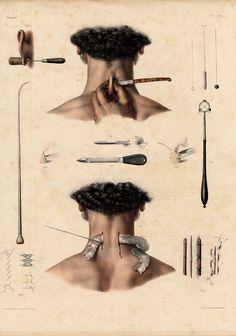 2 Antique Medical Anatomy Prints Operation Instruments PL 22 Bourgery 1831   eBay