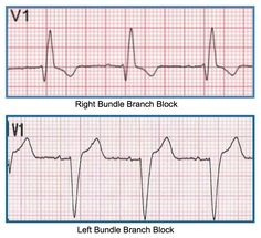 Iam frequently asked exactly how I approach 12-lead ECG interpretation. I use what I call the Six-Step Method.  It goes like this:  1.) Rate and rhyth