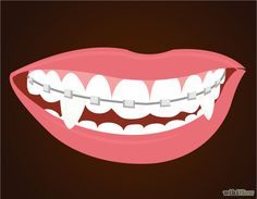 Make Vampire Fangs if You Have Braces Intro.jpg