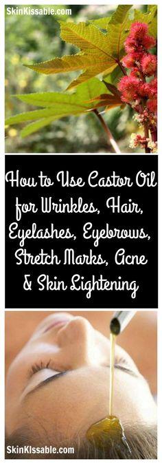 Castor oil benefits for skin