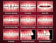 What Is Orthodontics?  Orthodontics is the branch of dentistry that corrects teeth and jaws that are positioned improperly. Crooked teeth and teeth that do not fit together correctly are harder to keep clean, are at risk of being lost early due to tooth decay and periodontal disease, and cause extra stress on the chewing muscles that can lead to headaches, TMJ syndrome and neck, shoulder and back pain.  @ http://www.charlburydental.co.uk