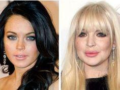 El rostro de Lindsay Lohan a través de 28 años, drogas y cirugías   Swagger