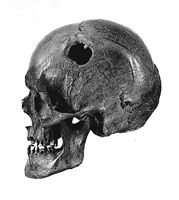 The skeleton of Gadevang Man was discovered in 1940, during peat cutting in a bog on Sealand in Denmark. The man was aged 35 to 50 when he died, sometime between 480 and 60 B.C. In the frontal and left parietal bone of his skull is an almost circular opening, a trepanation 1.2 inches in diameter. Gadevang Man survived this operation, as is clearly shown by the healed edges and the bone regeneration (see the small tongue invading the opening). (Antropologisk Laboratorium of Denmark…