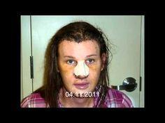Facial Feminization Surgery (FFS) Surgery Patient Video