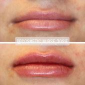 #augmentation #Building #Heres #lovely #slight #Thursday,  #augmentation #Building #Heres #lovely #slight #Thursday Lip Injections, Profile View, Lip Fillers, Makeup Blog, Thursday, Lips, Stay Tuned, Building, Couple