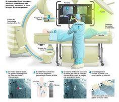 Un GPS para los vasos sanguíneos http://w.abc.es/959hxe