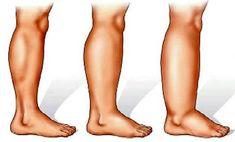 duzzadt láb Foot Remedies, Arthritis Remedies, Headache Remedies, Sleep Remedies, Skin Care Remedies, Health Remedies, Vicks Vaporub, Holistic Remedies, Natural Home Remedies