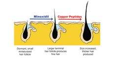 copper peptides hair loss , During the Second World War, clinicians noted that patients have serious burns or burn scars most likely to scar removal of follicles started to grow on the edges of the burned area. If not, chances were the scars remain.