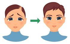 Black Seed (Kalonji) Hair Oil: Kick-Start Hair Growth in Bald Patches - hair buddha Bald Hair Growth, Extreme Hair Growth, Hair Growth Tips, Hair Loss Cure, Stop Hair Loss, Hair Loss Remedies, Grow Hair Back, Hair Grower, Bald Patches