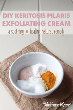 Keratosis Pilaris Exfoliating Cream Recipe! Wellness Mama blog has a new recipe for making a Soothing Keratosis Pilaris Exfoliating Cream. (Keratosis pilaris is an unsightly skin condition that manifests as red patches and bumps.) This cream moisturizes and exfoliates for clearer skin.