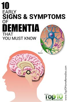 10 Symptoms of Alzheimer's in its Early Stages – You Shouldn't Ignore! - Page 4 of 4 - Daily Health News Dementia Symptoms, Alzheimer's And Dementia, Dementia Signs, Dementia Awareness, Dementia Care, Health Benefits, Health Tips, Top 10 Home Remedies, Endocannabinoid System