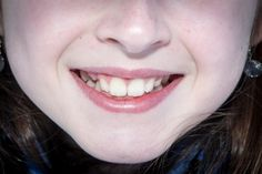 """This photo flash card """"mouth"""" comes from the Parts of the Body theme in the ELD Links Curriculum and is included with the lesson."""