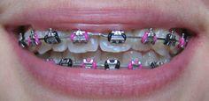 Lig colours (colors) - Page 7 - Metal Mouth Message Board Pink Braces, Black Braces, Braces Smile, Teeth Braces, Braces Bands, Braces Tips, Spacers For Braces, Braces And Glasses, Cute Braces Colors