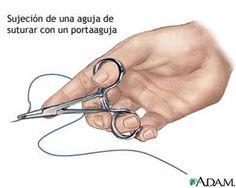 Utilizar grapas en vez de cierre con suturas absorbibles aumenta el riesgo de infección en cesárea, según un estudio publicado en Obstetrics & Gynecology.