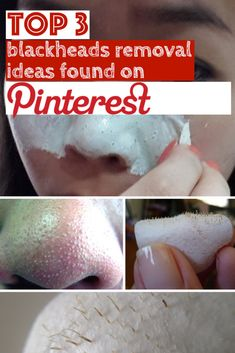 Top 3 blackheads removal ideas found on Pinterest