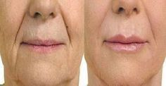 Improve Laugh Lines, Grin Crinkles, And Nasolabial Furrows Via Dynamic Face Gymnastics Exercises Facial, Health And Beauty Tips, Health Tips, Massage Treatment, Skin Care Clinic, Skin Spots, Dermal Fillers, Beauty Recipe, Skin Treatments