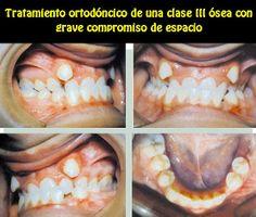 Tratamiento ortodóncico de una clase III ósea con grave compromiso de espacio y diversos problemas dentarios asociados | OVI Dental