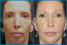 micro needling before and after - Google Search