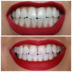 Teeth whitening products passionately engineered to perfection.from dental lab to your door. Finally, the perfect teeth whitening system for everyone. Perfect Teeth, Teeth Whitening System, Tooth Pain, Wisdom Teeth, White Teeth, Dental, Remedies, Faces, Smile