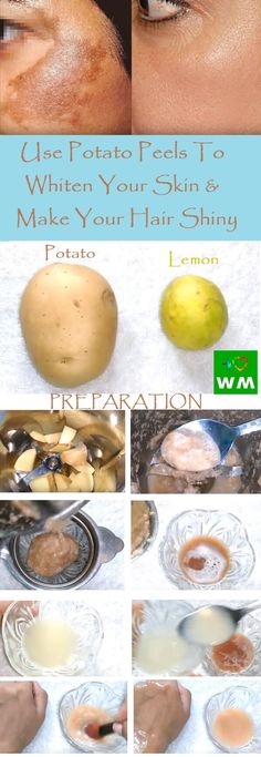 Believe it or not potato peels can make your hair shiny. What is more, they can help your hair grow faster. Follow this simple recipe and make your hair healthier.