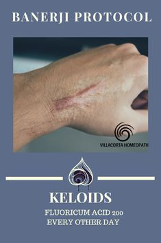 Protocol for Keloids Homeopathic remedy for the natural treatment of keloids.Homeopathic remedy for the natural treatment of keloids. Cold Home Remedies, Homeopathic Remedies, Natural Health Remedies, Alternative Health, Alternative Medicine, Homeopathy Medicine, Operation, Natural Treatments, Diy Home