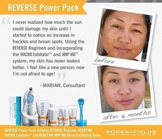 How much damage do you think your skin has taken? Luckily now, you can REVERSE it <3