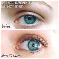 fd83a86e499 Before and after Lash Boost results How To Grow Eyelashes, Longer  Eyelashes, Eyebrows Grow