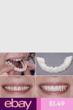 Teeth Fits Veneers Snap On Instant Smile Perfect Smile Comfort Fit Flex Smile Best Teeth Whitening Kit, Natural Teeth Whitening, Beauty Hacks Eyelashes, Perfect Smile, White Teeth, Dental Care, Healthy Skin, Healthy Life, The Balm