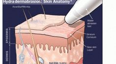 The Cycle of Post Hydra-Facial and Derma-Planing Immediately Afterward- your skin radiates a healhy glow 48-72 Hours – skin is hydrated as circulation has been boosted