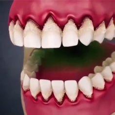 Progression of periodontal disease. Accumulation of dental plaque leads to gingivitis (gum inflammation). Gingivitis causes gum disease (gum recession, bone . Dental Hygiene Education, Dental Assistant Study, Dental Surgery, Dental Implants, Dental Videos, Dental Images, Gum Disease Treatment, Dental Anatomy, Dental Art