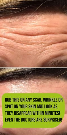 Rub This On Any Scar, Wrinkle Or Spot On Your Skin And Look As They Disappear Within Minutes! Even The Doctors Are Surprised! - Organic Remedies Tips Lemon Juice Benefits, Natural Cough Remedies, Natural Health Remedies, Natural Cures, Cold Remedies, Wrinkle Remedies, Natural Beauty, Burning Face Mask