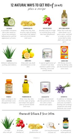 12 Natural Ways to Get Rid of Scars | http://helloglow.co/natural-scar-remedies/