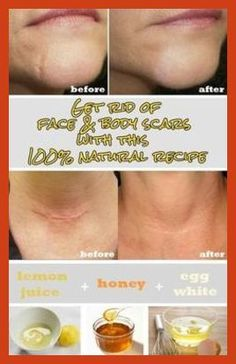 Homemade Acne Treatment - Baby Acne Treatment - Is There a Natural Acne Cure? * Be sure to check out this helpful article. #peeloffmask