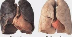 Anti Smoking System: smokers lungs with enlarged heart vs healthy lungs. Natural Beauty Remedies, Herbal Remedies, Health Remedies, Enlarged Heart, Organic Raw Honey, Respiratory Therapy, Respiratory System, Health Class, Heart Conditions